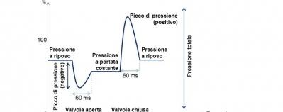 Profilo di pressione di una valvola